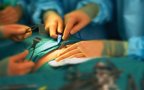 Chirurgiczne leczenie otyłości: rodzaje operacji bariatrycznych